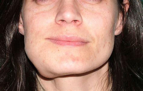 gonfiore interno bocca tumori cavo orale e della faccia chirurgia oncologica