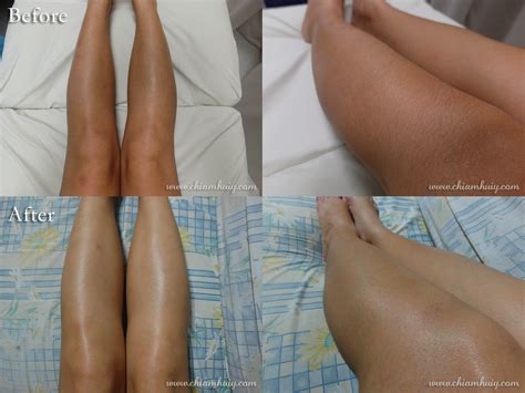 brazilian wax photos before and after hair removal related keywords suggestions for leg hair removal