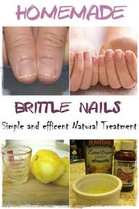 brittle nails nails and natural treatments on pinterest
