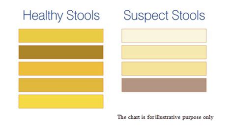 Whitish Stool In Adults by Pale Stools Defenderauto Info