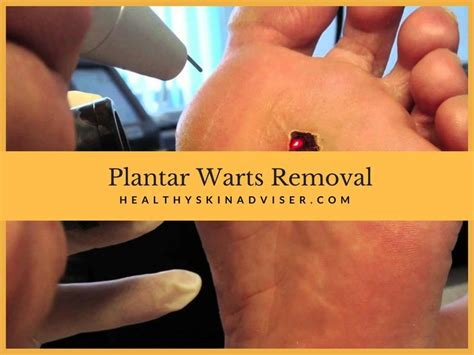 plantar wart removal how to get rid of warts with surgery