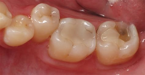 broken tooth disadvantages of dental implants every procedure has its cons ramsey a amin dds