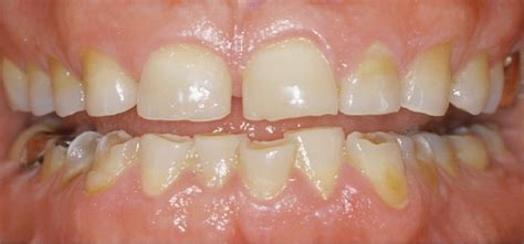 grincement des dents ou bruxisme sant 233 total aidez