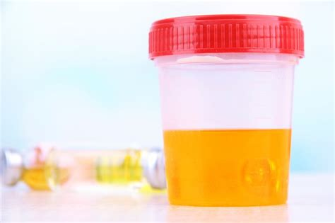 Etg Detox Kit by 10 Symptoms Of Kidney Failure Rm Healthy