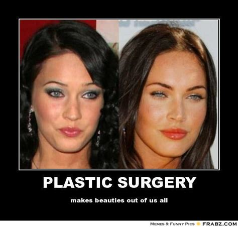 Plastic Surgery Meme - when to do scoliosis surgery memes