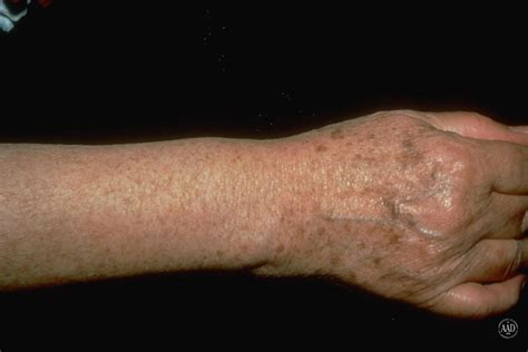 light spots on skin from sun what s the difference between melasma sun spots and