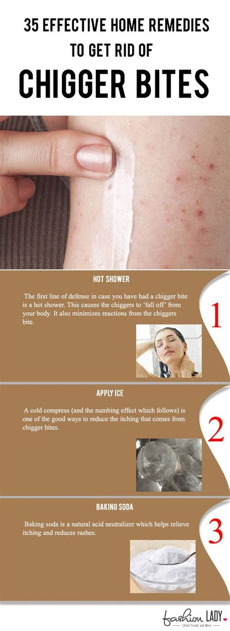 10 steps to get rid of chigger bites howtoxp com how to get rid of chiggers in your bed 28 images how