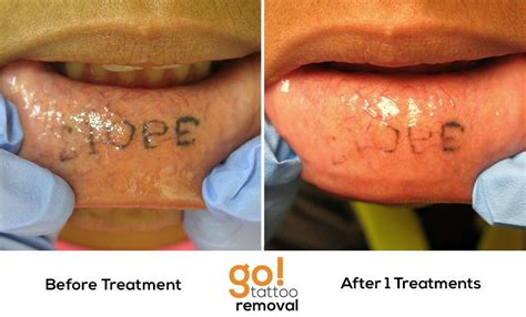 army tattoo removal the inner lower lip typically doesn t stay well in
