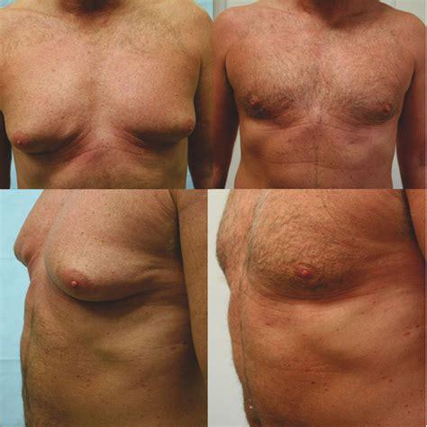 Brust Mann Bilder brust verkleinerung bei m 228 nnern gyn 228 komastie dr