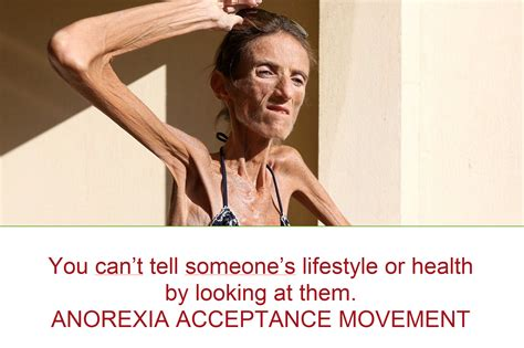 Anorexia Meme - you can t tell someone s lifestyle or health by looking at