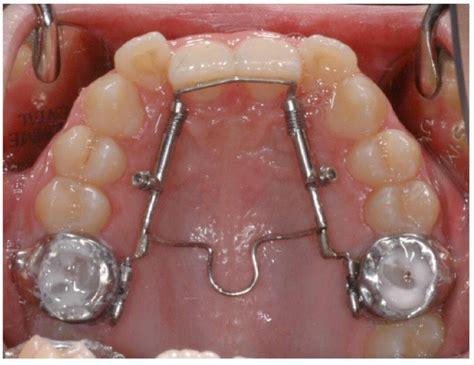 tpa proclination modified transpalatal arch
