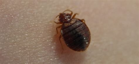 treat bed bug bites debugged