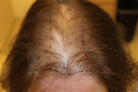 hair loss with thinning hair in the front photos hairstyle 2013