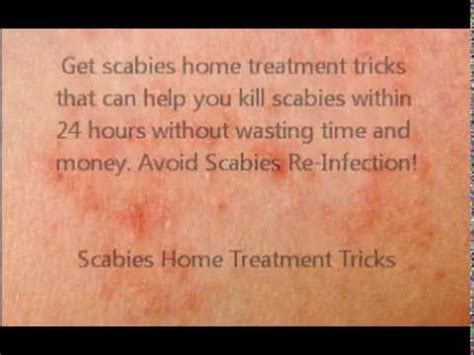 home tricks kill scabies fast scabies home treatment tricks youtube