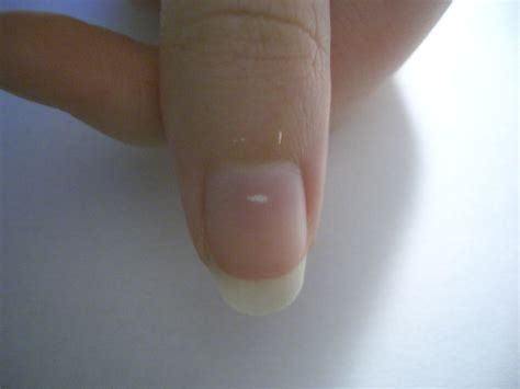 White Nail Beds by Why Do You Get White Spots On Your Fingernails Mr