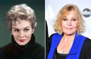 kim novak siblings 152 best plastic surgery images on pinterest