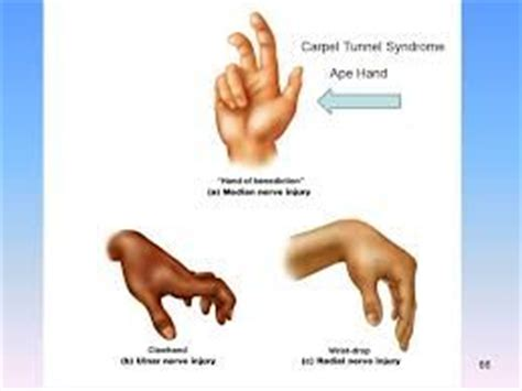 9 best images about hand deformities on pinterest