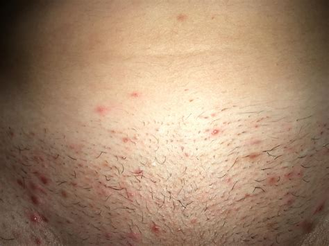 constant ingrown hairs on pubis constant ingrown hairs on pubis i m at a loss with my