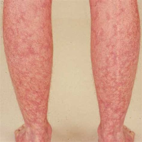Flower Pattern Rash   identifying rheumatoid arthritis rash livedo reticularis