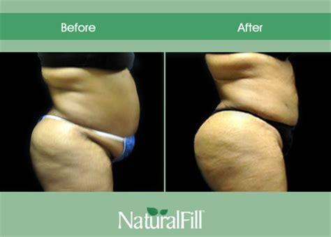 Augmentation Fill by Naturalfill Breast Augmentation Naturalfill