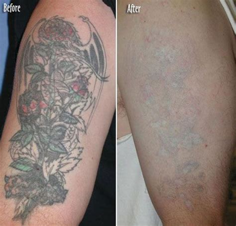 long island tattoo removal 40 best removal images on arm