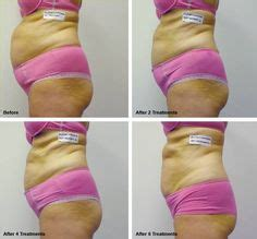 light rx before and after 1 week post op laser lipo before after pinterest