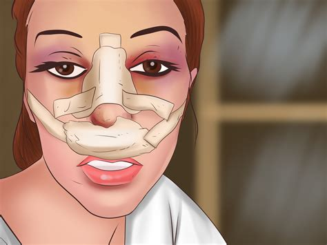 Has Surgery by 5 Ways To Plastic Surgery Wikihow