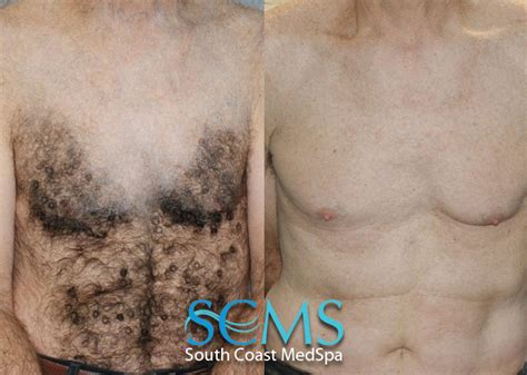chest tattoo removal before after laser hair removal los angeles laser hair removal orange