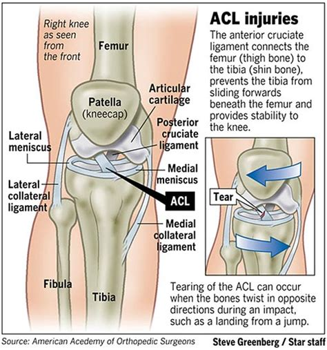 torn acl symptoms acl tear symptoms search engine at search
