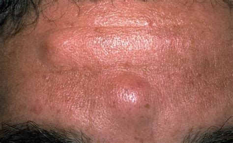 lump on bumps on forehead small spots get rid of lump on forehead white raised