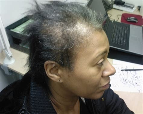 hirsytles for women with alopecia that areblack black women and hair loss hairstyle for black women