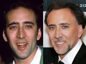 celebrity smiles before and after porcelain veneers