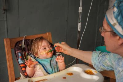 feeding clinics and tube weaning: the approach matters