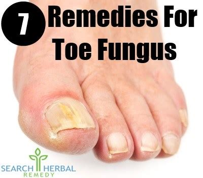 7 remedies for toe fungus cure herbal