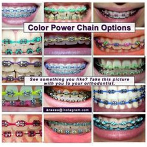 color options for braces search bracess