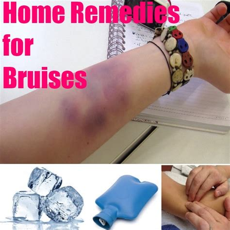 the best home remedies for bruises diy find home