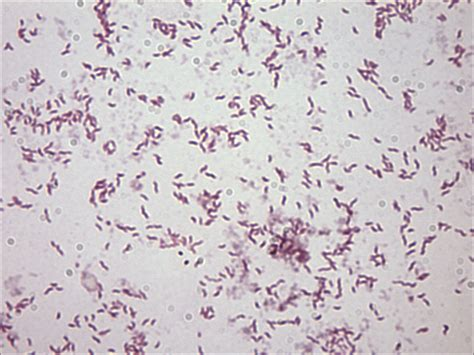 Stool Cylobacter by Cylobacter Causes Symptoms Treatment Cylobacter