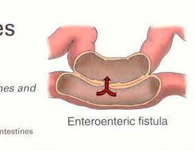 Small intestines enteroenteric fistula pertaining to the small