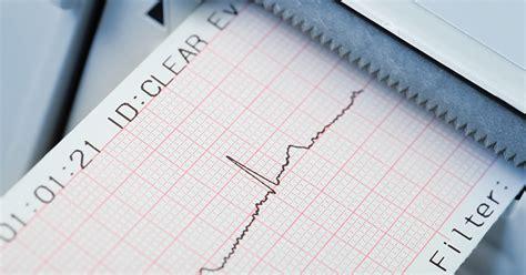 hausmittel gegen schlafstörungen elektroschocks schnelle hilfe bei herzrhythmusst 246 rungen