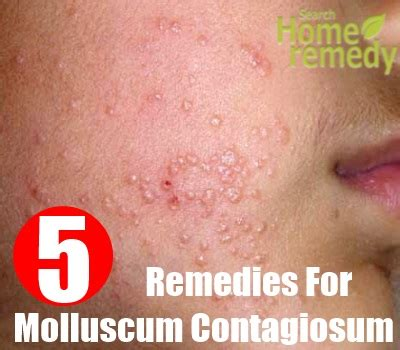 molluscum contagiosum home remedies treatments and cures