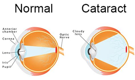 lenses with cataracts regenerated using stem cells
