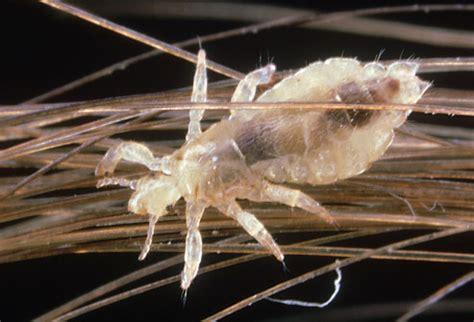 healthy life: head lice
