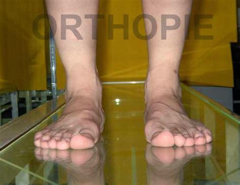 a pie de co en inglés biomecanica y ortopedia del pie