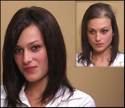 hair topper for balding in women hair transplants are not effective for female pattern