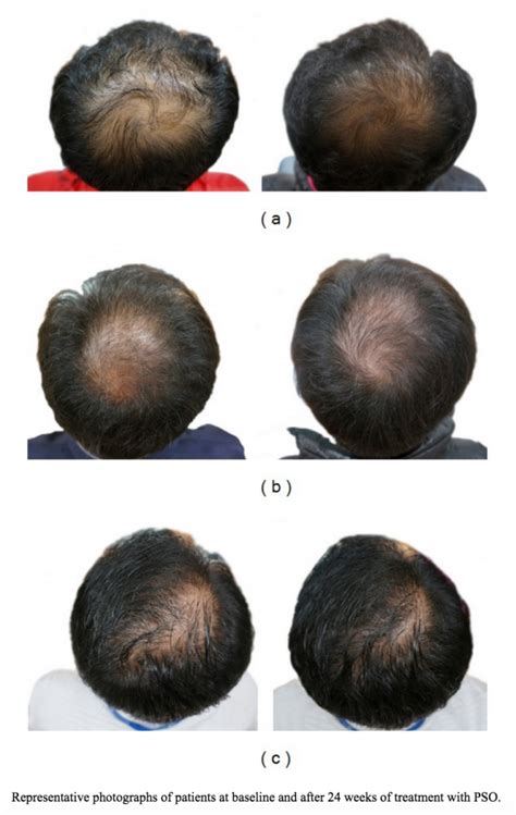 my hair regrow with balck seeed oil great results using pumpkin seed oil for hair loss 24 weeks
