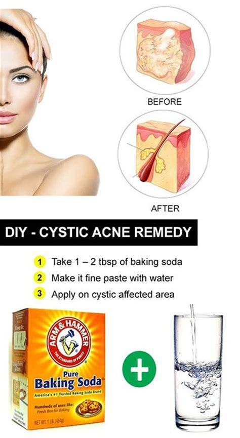 diy cystic acne cures remedies to clear up