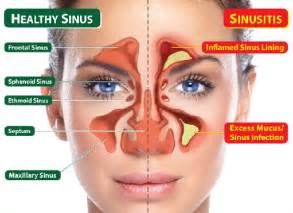 sinus infection mucus color jamaica scientific research institute