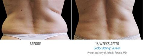 Liposuction Or Weight Loss by Coolsculpting Or Tumescent Liposuction For Targeted