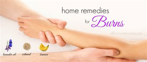 20 home remedies for burns on skin including