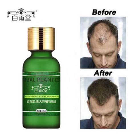 hair grow hair growth serum reviews online shopping hair growth
